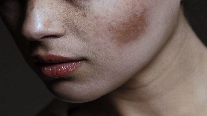 Tips Menghilangkan Flek Hitam Di Wajah Dengan Bahan Alami