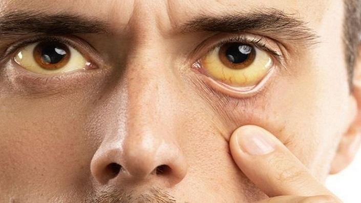 Waspadai Mata Kuning, Ada Masalah Serius Pada Kesehatan