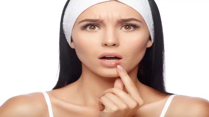 Bibir Hitam, Ini Penyebab dan Cara Mengatasinya