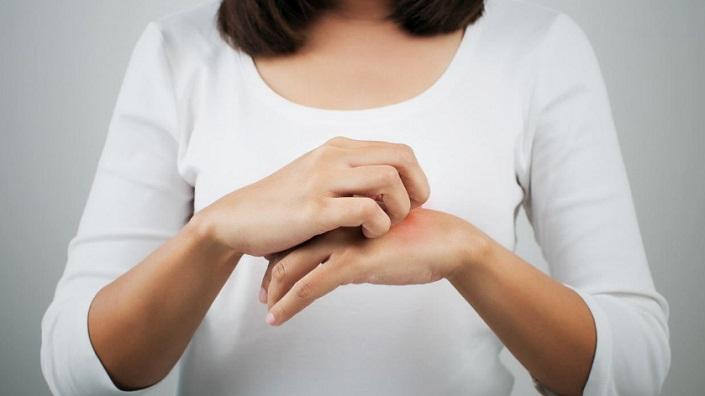 Jangan Abaikan Alergi Dingin, Bisa Menyebabkan Kematian